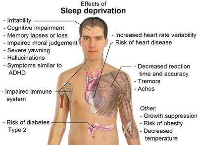 Alvászavar 2. - alvászavar kezelése Győrben, alvászavar, álmatlanság, kialvatlanság, nyugodt alvás